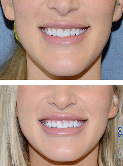 Restylane, Juvederm and Prevelle Raleigh NC