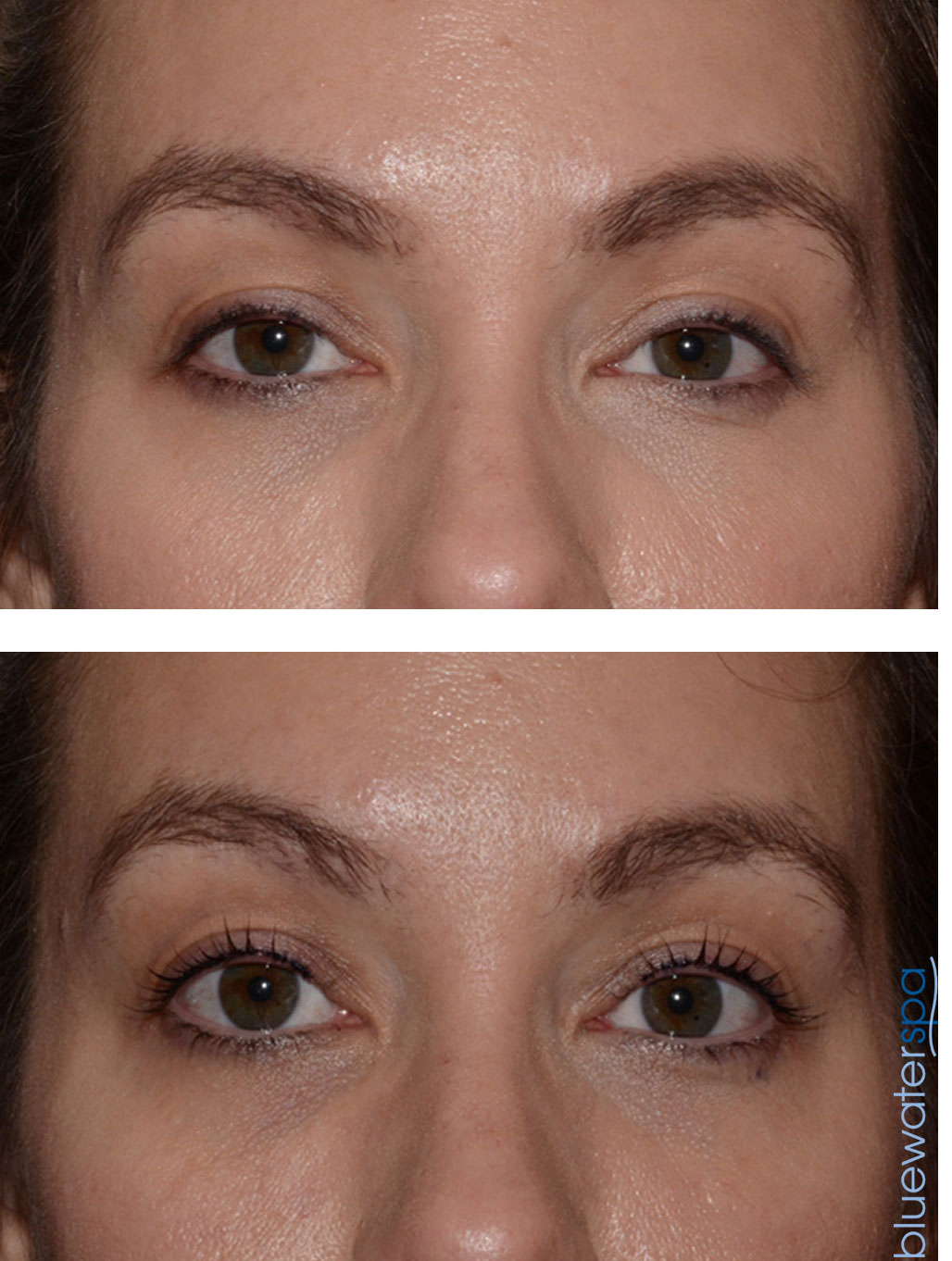 lash lift patient