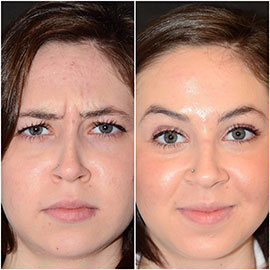 Botox Facial In Raleigh Nc