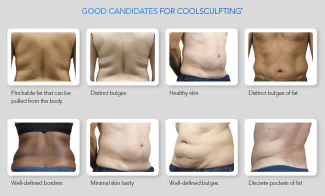 CoolSculpting Canidates