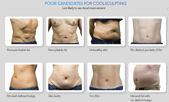 CoolSculpting Canidate