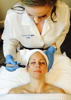 Microneedling MD