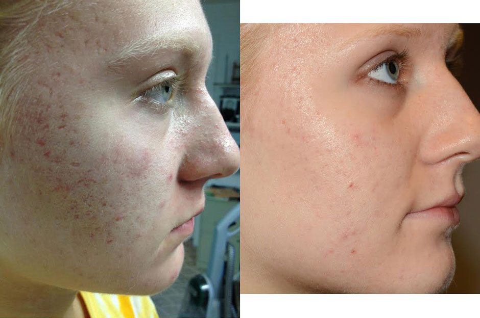best ways to clear skin