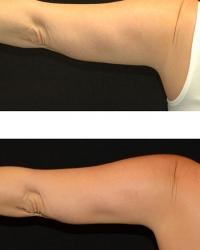 19784.arm.1tx.3mos.female-(1)