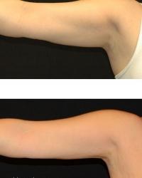 19784.arm.1tx.3mos.female-(2)