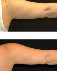 19784.arm.1tx.3mos.female-(3)