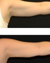 19784.arm.1tx.3mos.female-(4)