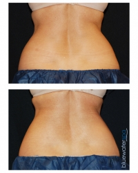 Patient 10 - CoolSculpting Before and Afters | Raleigh NC
