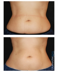 Patient 11a - CoolSculpting Before and Afters | Raleigh NC