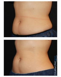 Patient 11b - CoolSculpting Before and Afters | Raleigh NC
