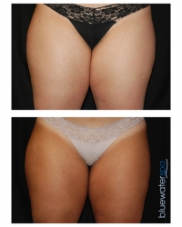 Patient 11e - CoolSculpting Before and Afters | Raleigh NC