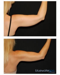 Patient 12 - CoolSculpting Before and Afters | Raleigh NC
