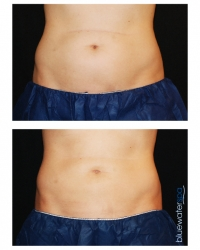 Patient 13a - CoolSculpting Before and Afters | Raleigh NC