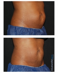 Patient 14 - CoolSculpting Before and Afters | Raleigh NC