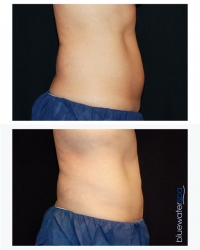 Patient 15 - CoolSculpting Before and Afters | Raleigh NC