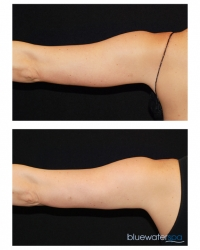 Patient 17a - CoolSculpting Before and Afters | Raleigh NC