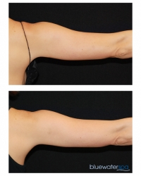 Patient 17b - CoolSculpting Before and Afters | Raleigh NC