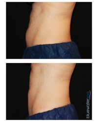 Patient 18a - CoolSculpting Before and Afters | Raleigh NC