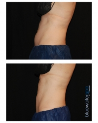 Patient 18c - CoolSculpting Before and Afters | Raleigh NC