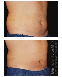 Patient 1b - CoolSculpting Before and Afters | Raleigh NC