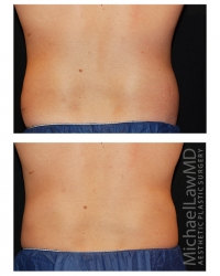 Patient 1c - CoolSculpting Before and Afters | Raleigh NC