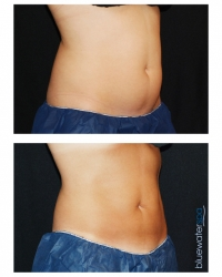 Patient 2b - CoolSculpting Before and Afters | Raleigh NC