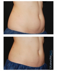 Patient 3b - CoolSculpting Before and Afters | Raleigh NC