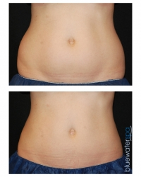 Patient 3e - CoolSculpting Before and Afters | Raleigh NC