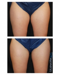 Patient 4 - CoolSculpting Before and Afters | Raleigh NC