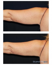 Patient 6b - CoolSculpting Before and Afters | Raleigh NC