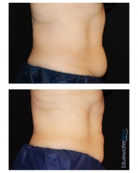 Patient 8 - CoolSculpting Before and Afters | Raleigh NC