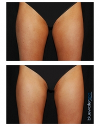 Patient 9 - CoolSculpting Before and Afters | Raleigh NC