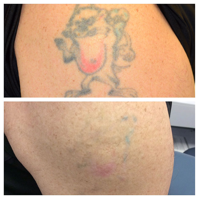 Patient 2 - Tattoo Removal Before and Afters Raleigh NC