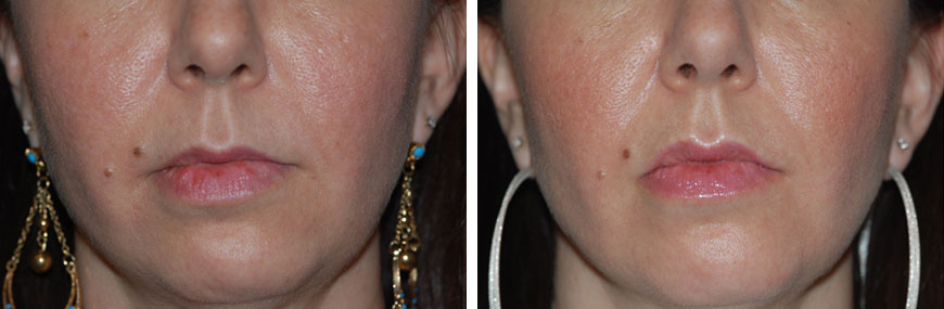 botox-for-lips01a