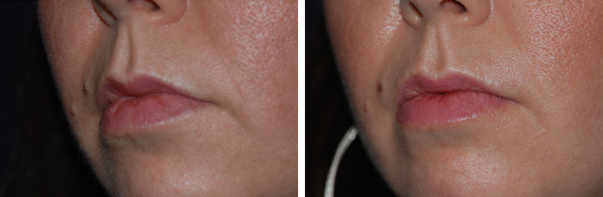 botox-for-lips01b