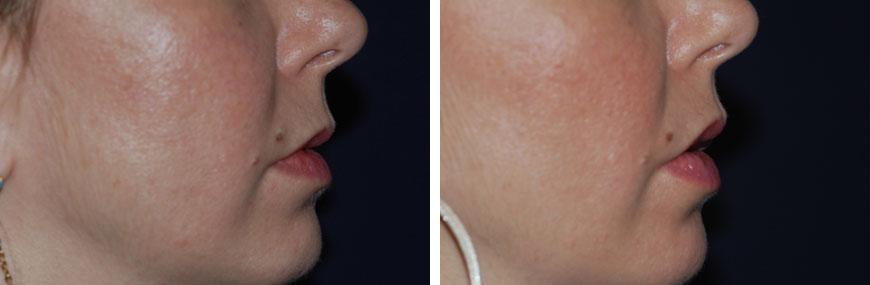 botox-for-lips01c