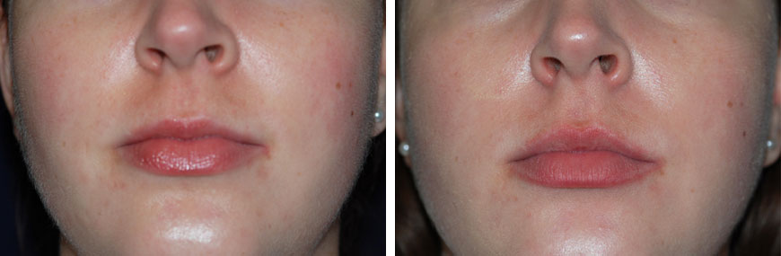 botox-for-lips02a