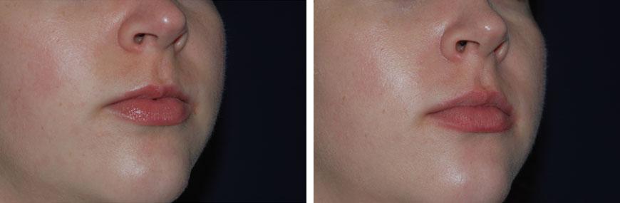 botox-for-lips02b