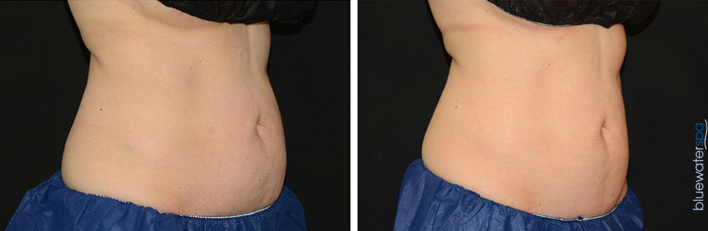 coolsculpting1-a