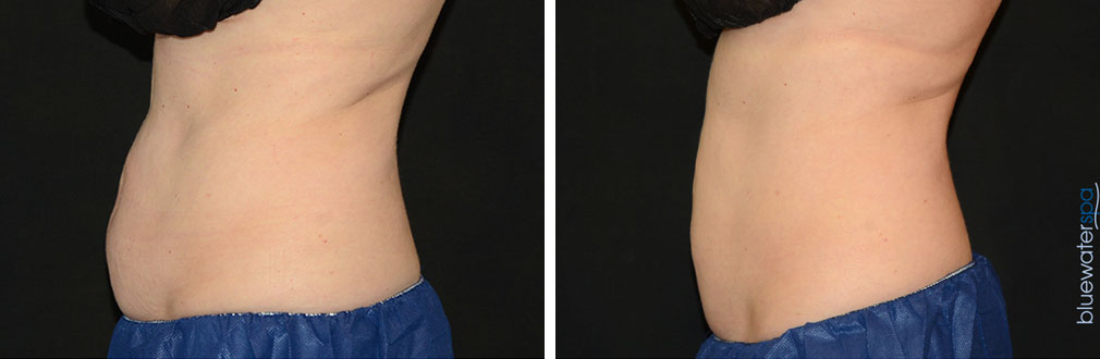 coolsculpting1-b