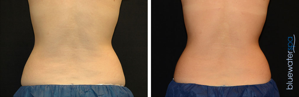 coolsculpting2-a