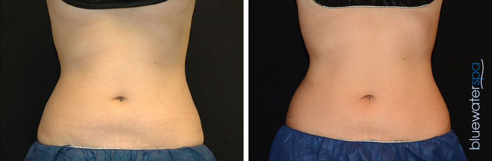 coolsculpting2-b