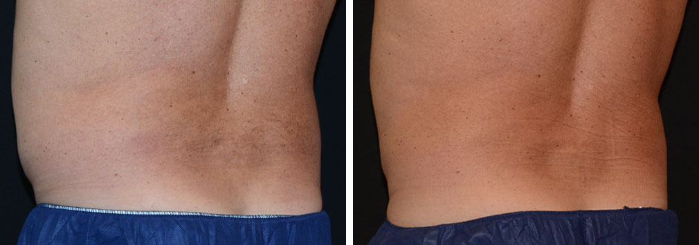 coolsculpting-men.flanks-14a