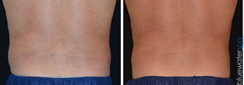 coolsculpting-men.flanks-14b