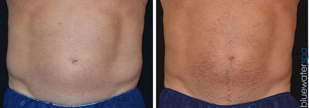 coolsculpting-men.flanks-14c