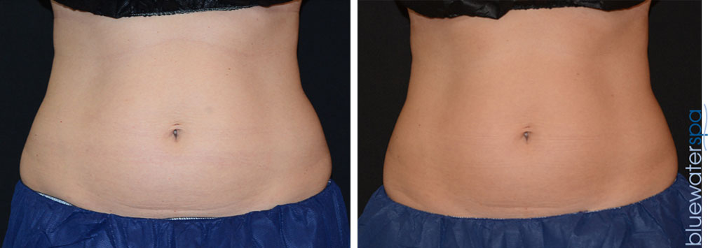coolsculpting-upperab-lowerab-17b