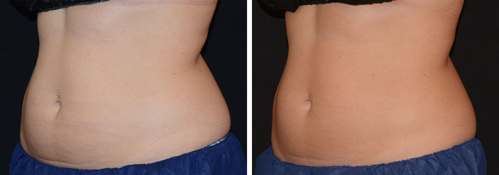 coolsculpting-upperab-lowerab-17c