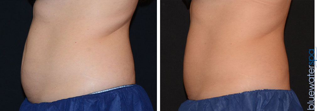 coolsculpting-upperab-lowerab-17d