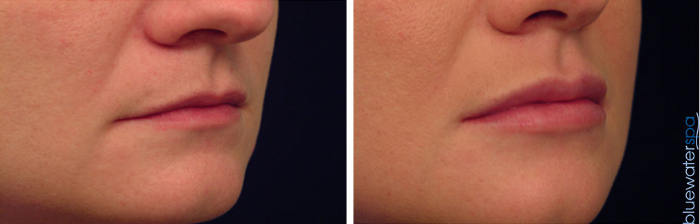 Lip Augmentation Before and Afters | Raleigh NC