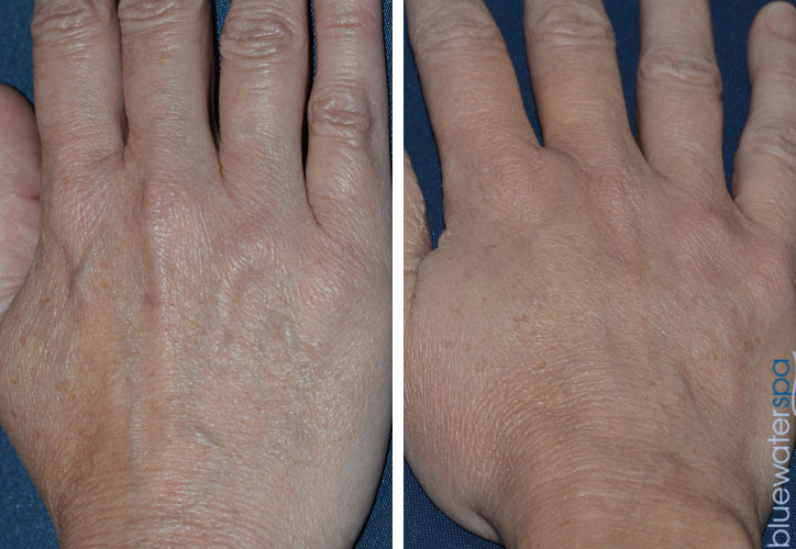 Hand Rejuvenation Before & After